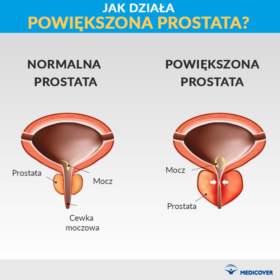 Leczenie prostaty biorezonansem
